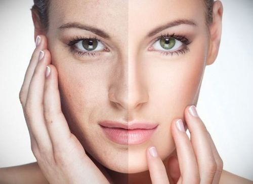 Атравматична чистка обличчя