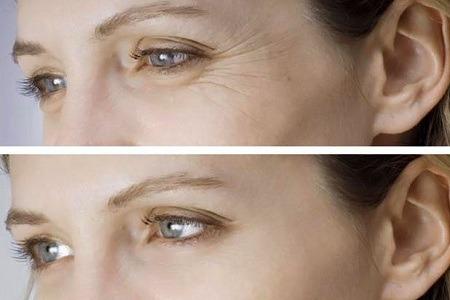 Біоревіталізація Очей