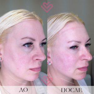 До и после подтяжка лица