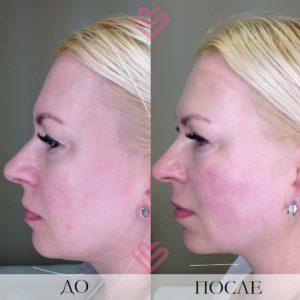 Smas лица до и после