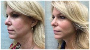 chin-liposuction-1024x576