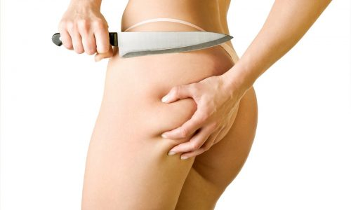 girl cut off her cellulite, isolated on white