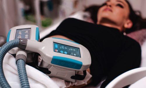 клиенты на процедуре криолиполиза живота